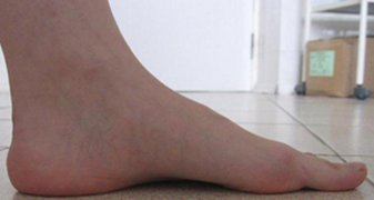 Эластичная уплощенная стопа после операции