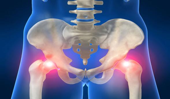 коксит тазобедренного сустава причины