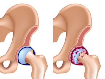 иглоукалывание лечение коксартроза