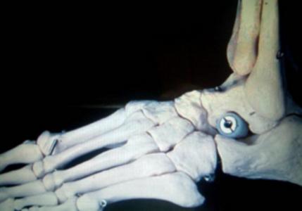 лечение плосковальгусной деформации стопы