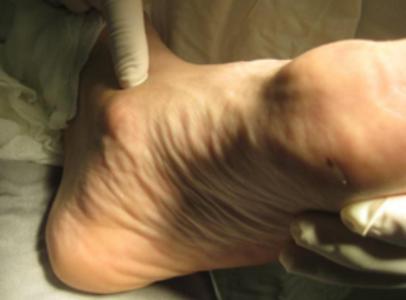 развитие плосковальгусной деформации стопы