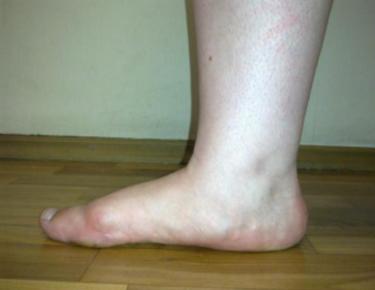симптомы плосковальгусной деформации стопы