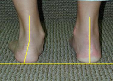 Выраженная плосковальгусная деформация левой стопы