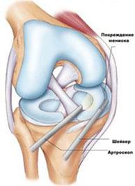 Артроскопия-коленного-сустава-схема-операции
