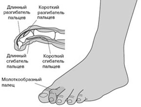 Молоткообразная-деформация-2-го-пальца-стопы