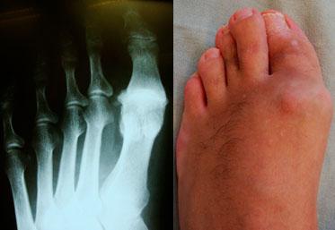 Рентгенограмма-и-стопа-с-артрозом
