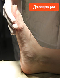 ахиллово-сухожилие-до-операции