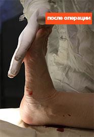 ахиллово-сухожилие-после-операции