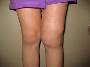 артрит-левого-колена