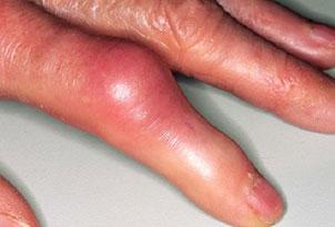 артрит-пальцев-рук