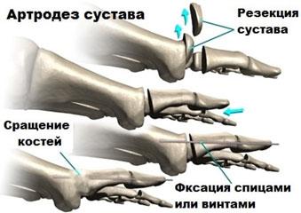артродез-3