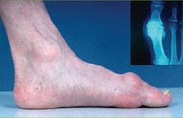 Лечение артроза большого пальца ноги стадии и методы