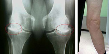 artroz-kolennogo-sustava-3-stepeni