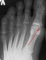 Остеоартроз плюснефалангового сустава сближены выстыпы скакательных суставов у собаки
