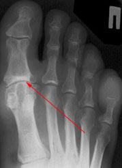 Остеоартроз 1 плюснефаланговых суставов 3 4 степени гели для лечения воспаленных суставов