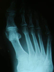 artroz-pfs