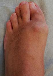 artroz-plsyusnefalanga-1