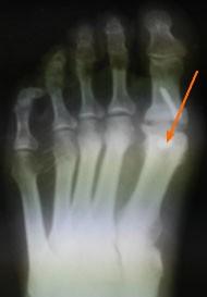 асептический-некроз-рентгенограмма-1