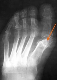 асептический-некроз-рентгенограмма-2