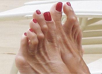 деформации-пальцев-стопы