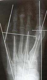 диагностика-деформации-тейлора-2