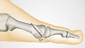 дистальная-остеотомия-1