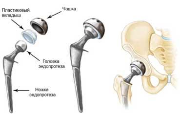 Замена сустава шейка бедра и локти также постепенно формируются коленные суставы он уже способен