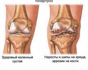 Артрит и артроз межфаланговых суставов чудодейственная растирка от болей в суставах