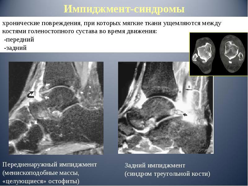 дисплазия тазобедренного сустава у кошки