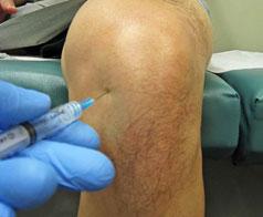 инъекция-коленного-сустава-2