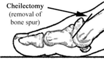 xejlektomiya-1