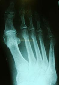 хейлоктомия-пфс-рентгенограмма