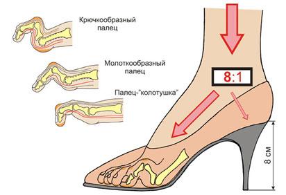 когтеообразная-деформация-пальцев-стопы
