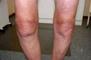 колени-при-артрозе