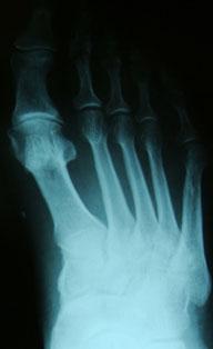 Доа 1 плюснефалангового сустава отводящий ортез orlett на тазобедренный сустав для детей