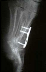 корригирующая-остеотомия-рентгенограмма-после