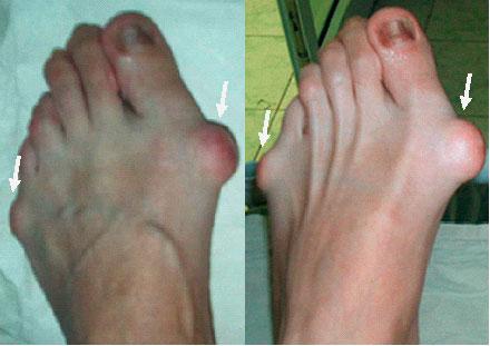 Сильно болит косточка на ноге что делать Лечение и отзывы