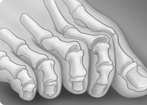 молоткообразная-деформация-2-и-3-пальца