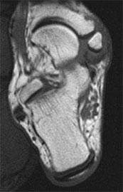 операция-киднера-рентген