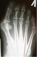 остеотомия-jouvara-1