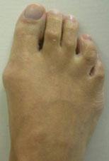 остеотомия-jouvara-2