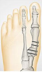 остеотомия-juvara-1