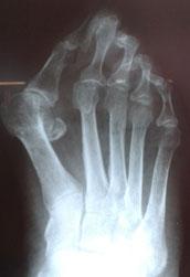 остеотомия-juvara-2