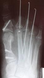 остеотомия-juvara-3
