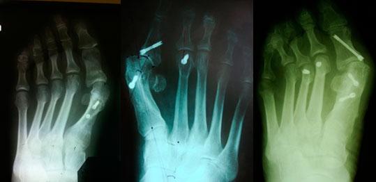 остеотомия-проксимальной-фаланги