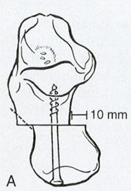 остеотомия-пятки-2