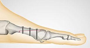остеотомия-scarf-1