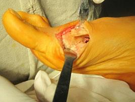 остеотомия-scarf-операция
