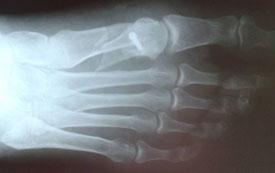 остеотомия-scarf-рентгенограмма