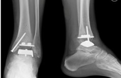 rentgen-posle-operacii-na-golenostope